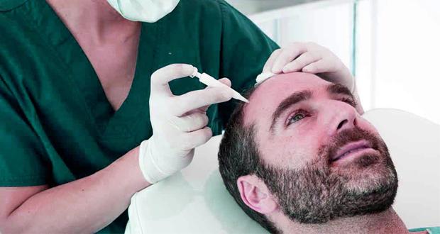 bioimpresión de cabello