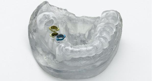 impression 3D medical