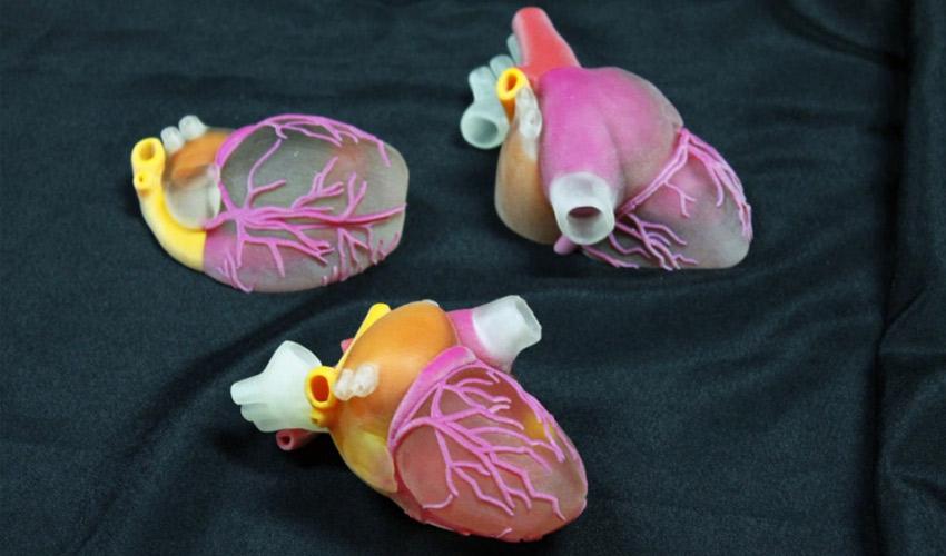 3D-gedruckte chirurgische Modelle
