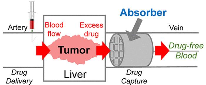 3D-gedruckter ChemoFilter