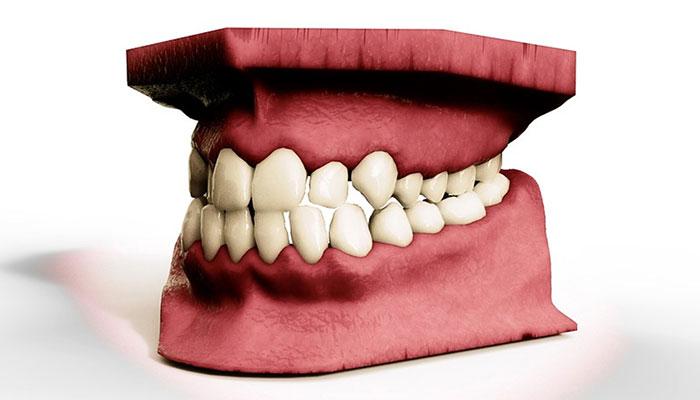 3D-gedrucktes Implantat des Unterkiefers