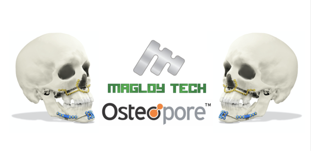 Osteopore and Magloy Tech Launch Dissolvable Bone Implant