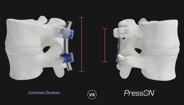 Nexus Spine's PressON