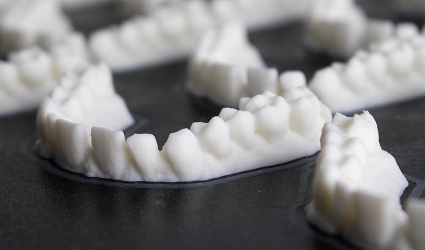 The 3D Printing Dental Market is Booming - 3Dnatives