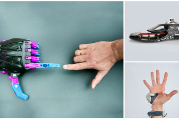TOP 12 3D printed prostheses