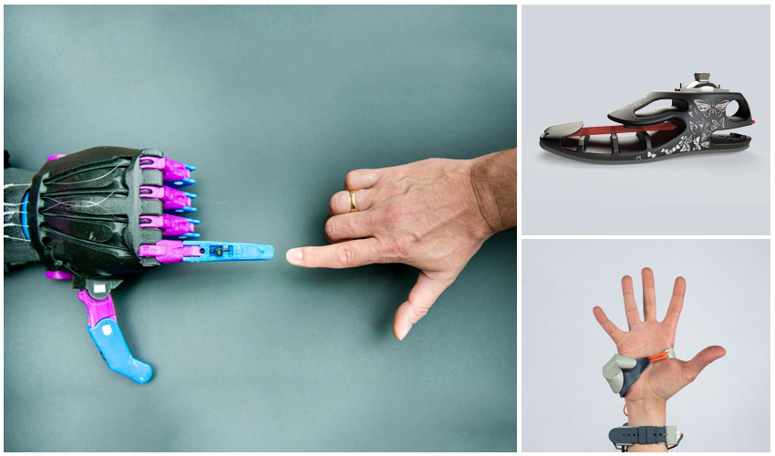 TOP 12 3D printed prostheses - 3Dnatives