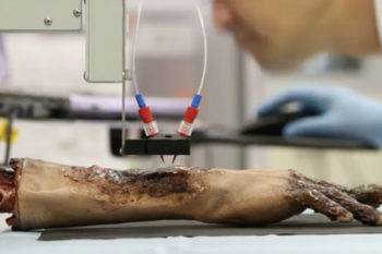 Wake Forest Institute for Regenerative Medicine develops mobile 3D bio-printer to heal extensive wounds