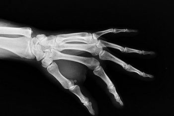 Particle3D is creating tailor-made 3D printed bone implants