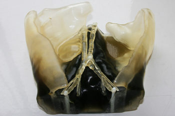 Organ transplant facilitated using 3D technologies