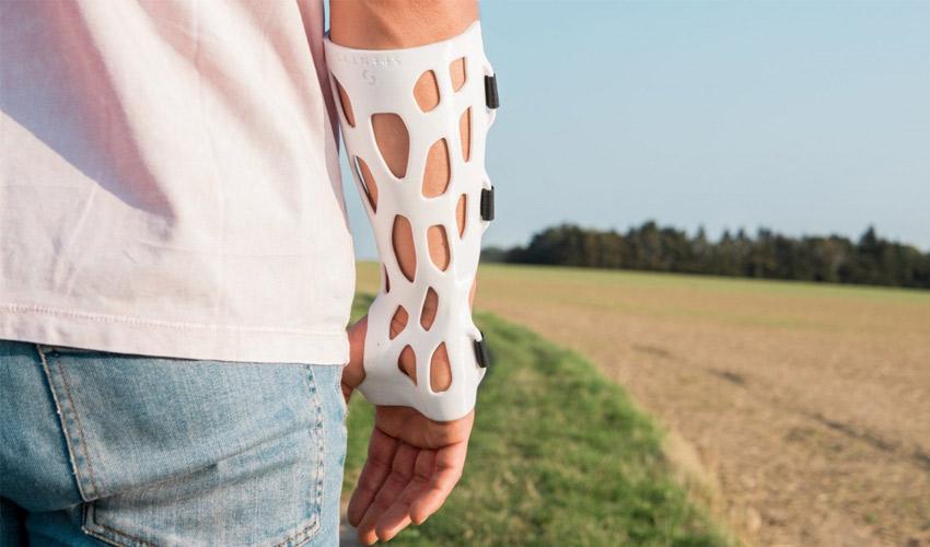 3D printed orthoses