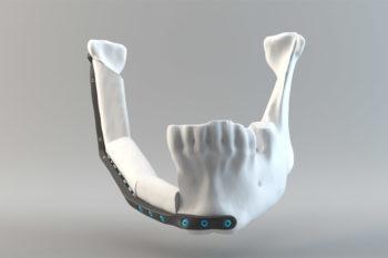 CRIQ develops custom 3D printed jaw implants