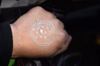 3D printing of electronics directly on the skin