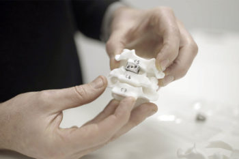 Renishaw partners with IMR and nTopology to 3D print spinal implants