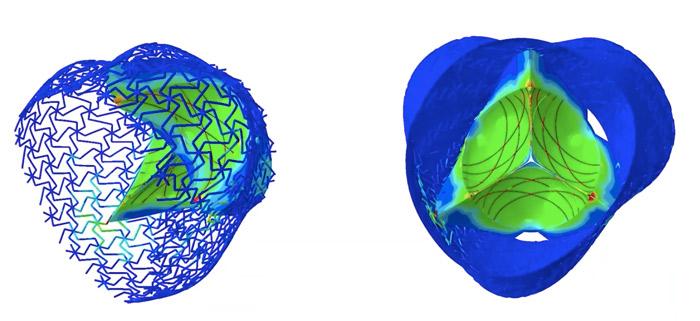 3D printed heart valve