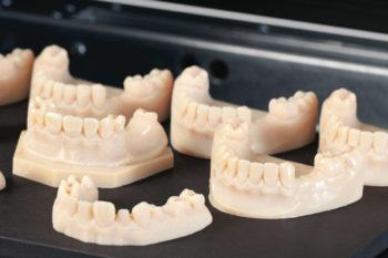 ¿Por qué está creciendo la fabricación aditiva dental?