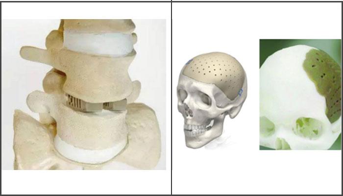 clavícula impresa en 3D