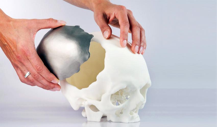 implantes impresos en 3D
