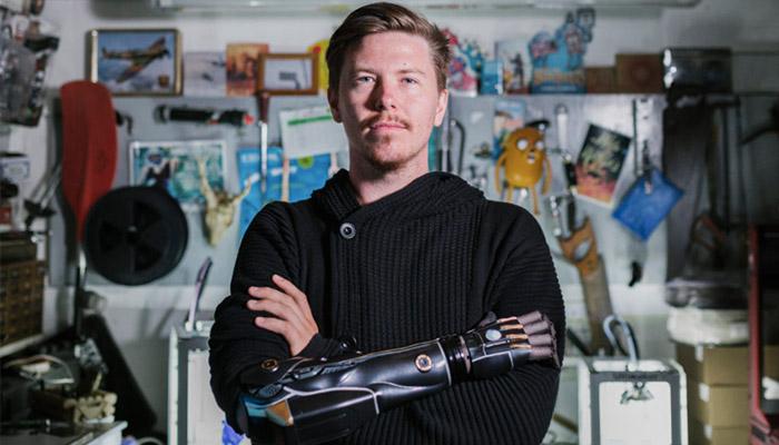 ero Arm - Prótesis discapacitados