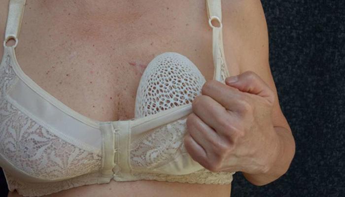 prótesis mamarias en 3D