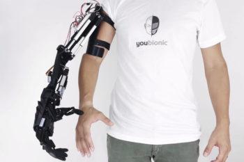 Youbionic y su brazo biónico impreso en 3D