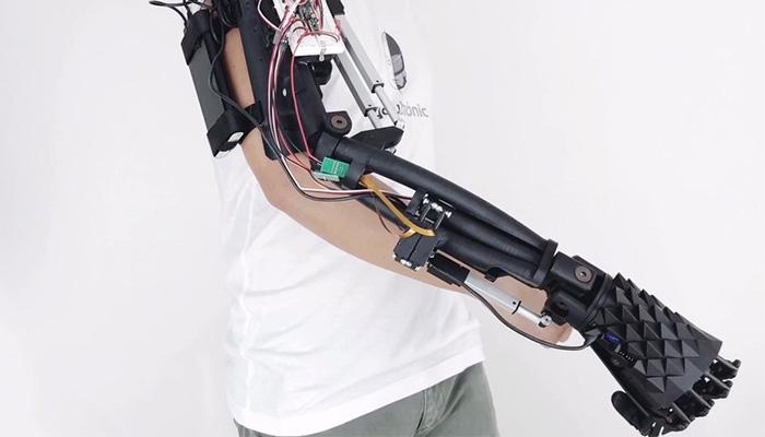 brazo biónico