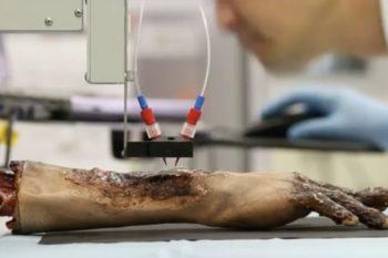 Una bioimpresora móvil capaz de imprimir piel directamente sobre las heridas