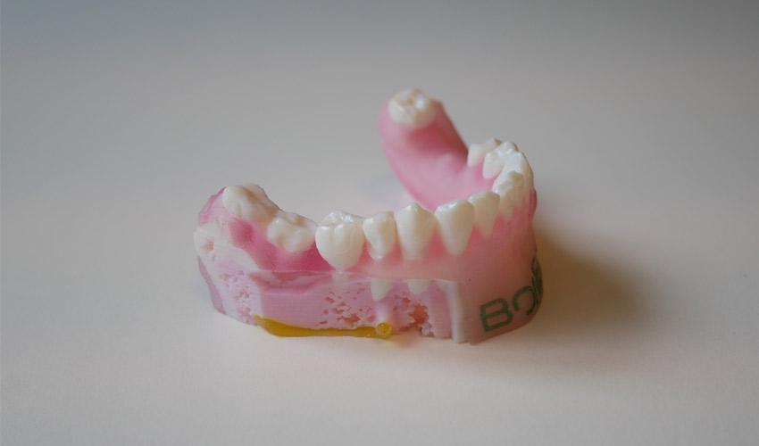Bone3D