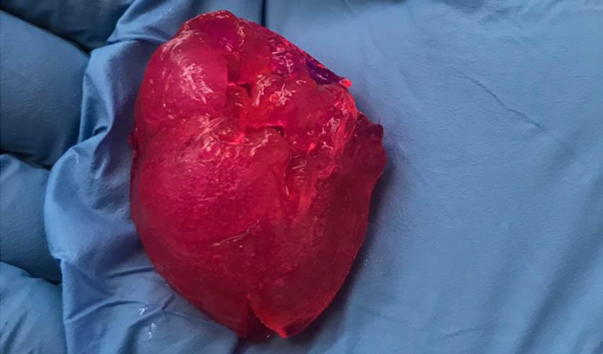 corazón humano bioimpreso