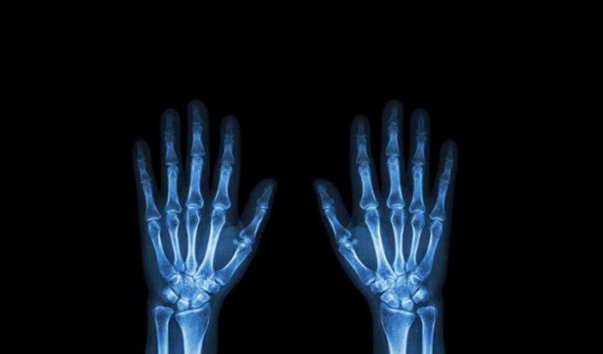 La impresión 3D ayuda al tratamiento del cáncer óseo