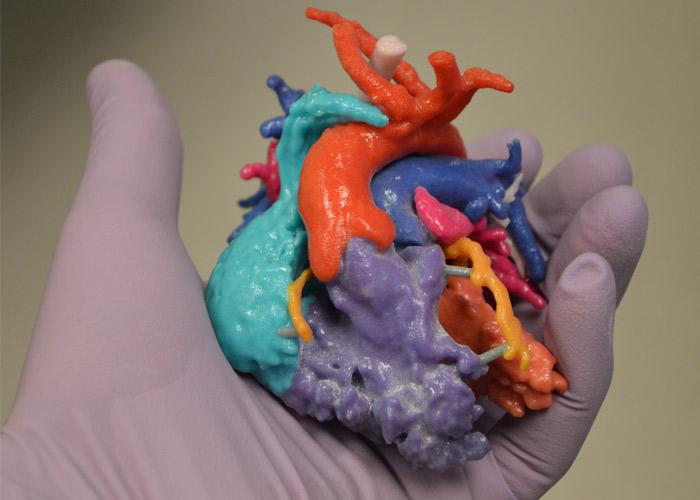modelos quirúrgicos 3D