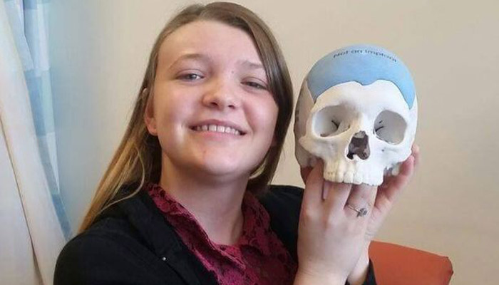implante 3D craneal