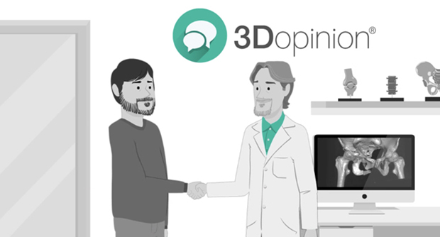 3Dopinion