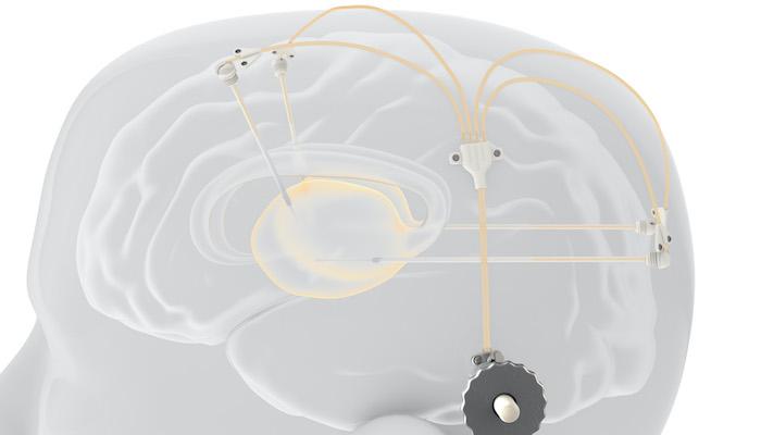 Implant medicament Parkinson