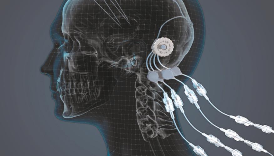 implant administration medicament 3D
