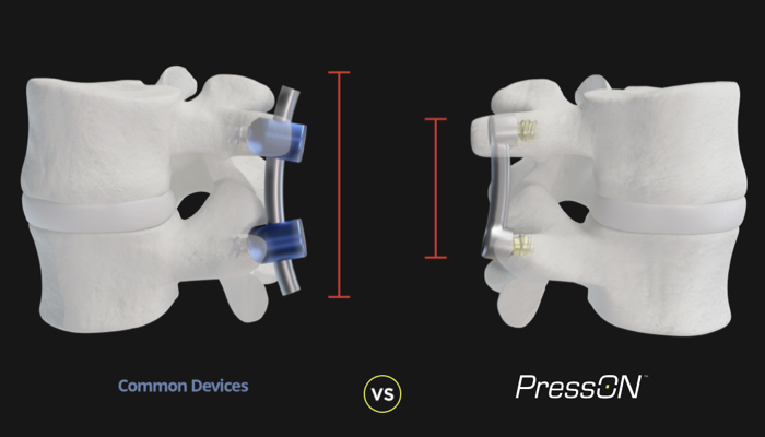 nexus-spine-3D-2
