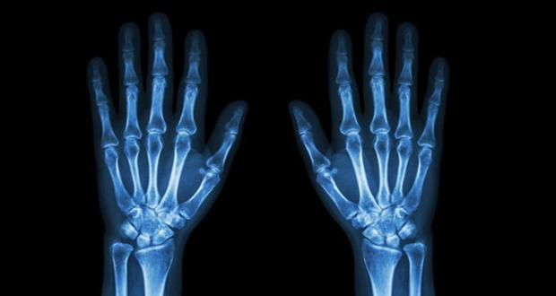 cancer osseux
