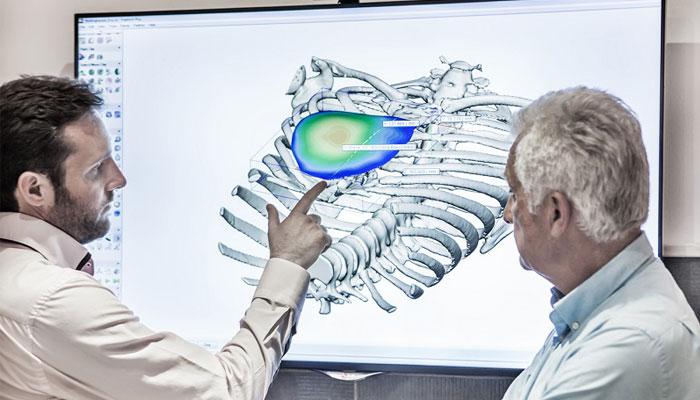 impression 3D médicale