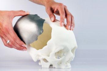 TOP 12 des implants imprimés en 3D