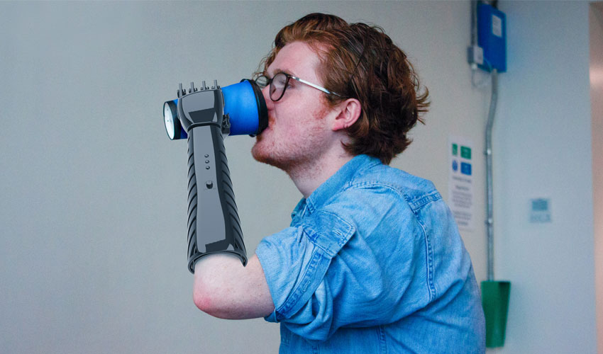 prothèse imprimée en 3D low-cost