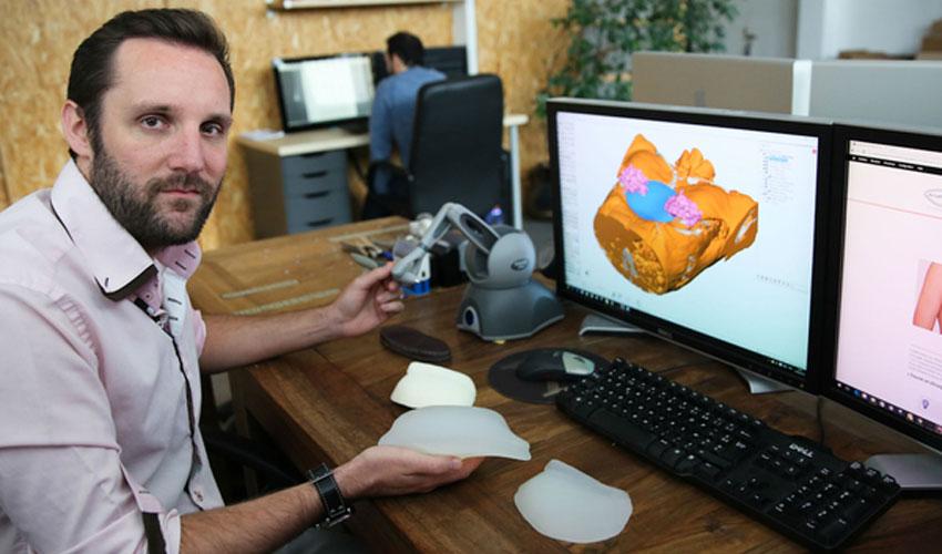 Startup 3D du mois : AnatomikModeling et les implants 3D sur mesure