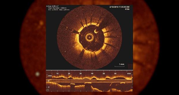 Une caméra miniature est utilisée pour inspecter les artères du patient