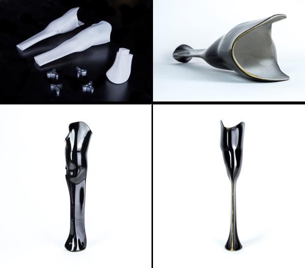 prothèse imprimée en 3d