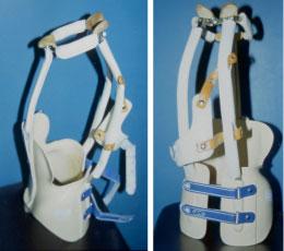 Les corsets traditionnels peuvent s'avérer lourds et inconfortables pour l'enfant.