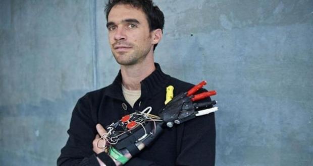 Nicolas Huchet et sa prothèse Bionico Hand