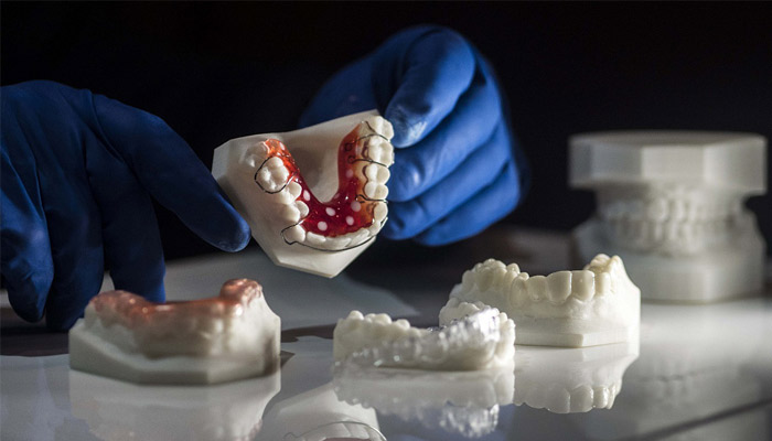 impression 3D dentaire