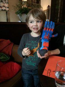 Alexis, 4 ans, arbore sa prothèse imprimée en 3D