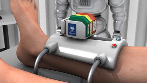 Le Bio-Printing pourrait permettre un meilleur traitement des blessures de guerre