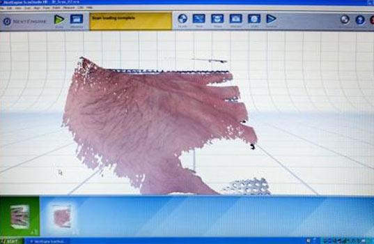 La première étape consiste à modéliser en 3D la blessure de la peau