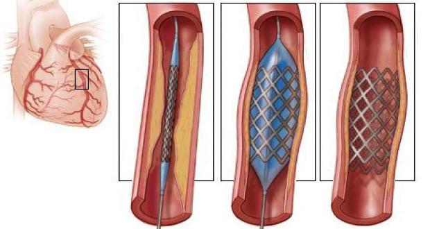 artere impression 3d