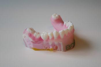 #Startup3D : Bone3D, l'impression 3D au service de la chirurgie
